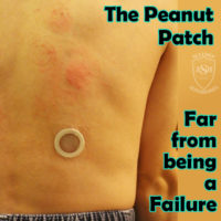 Viaskin Peanut Patch Not a Failure Food Allergy Treatment Epicutaneous Immunotherapy Allergy Superheroes